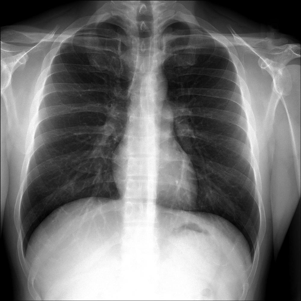 La respiración lenta; ¿una nueva forma de terapia?.