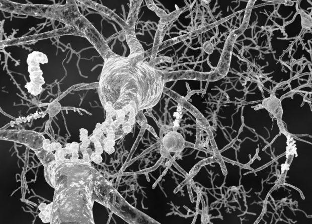 brain-heart dementia